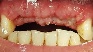 albany-dental-implant01