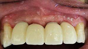 albany-dental-implant03