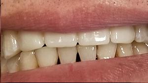 albany-dental-implant04