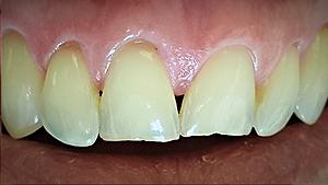 albany-smile-dentistry01