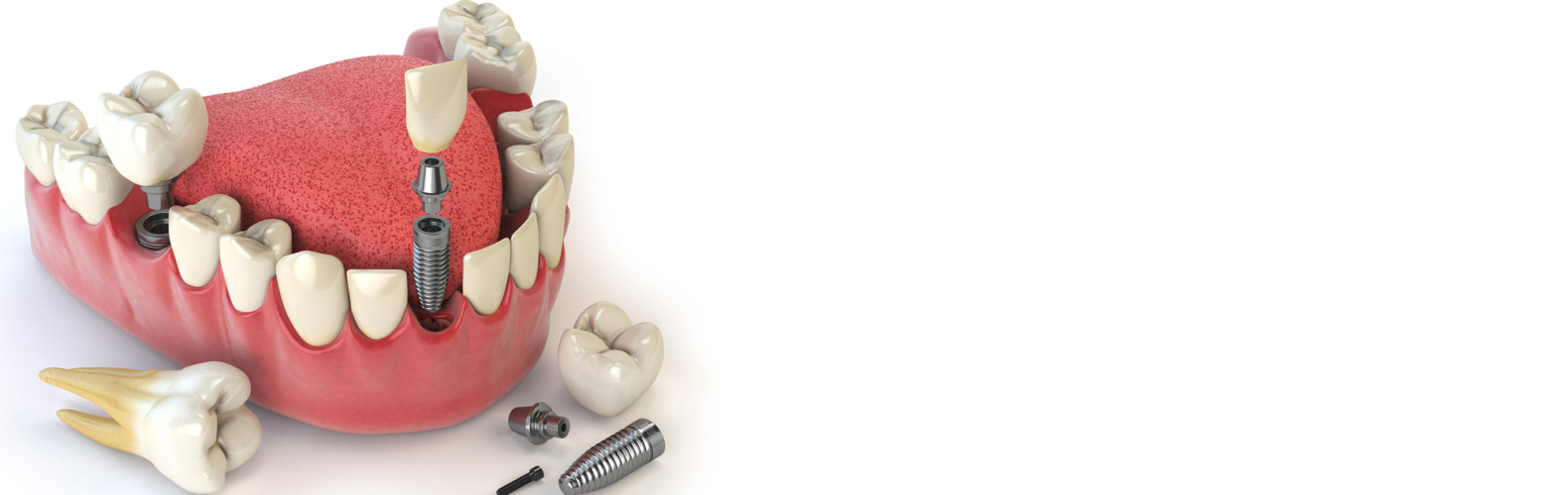 albany-dentist02b
